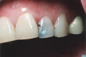 white-fillings-before