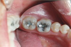 white-fillings-molars-before