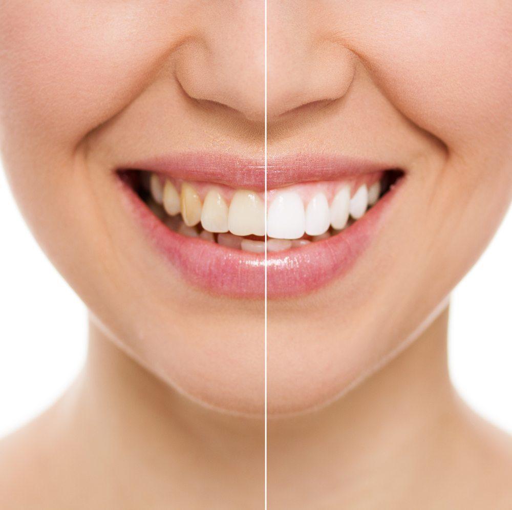 veneers dentist