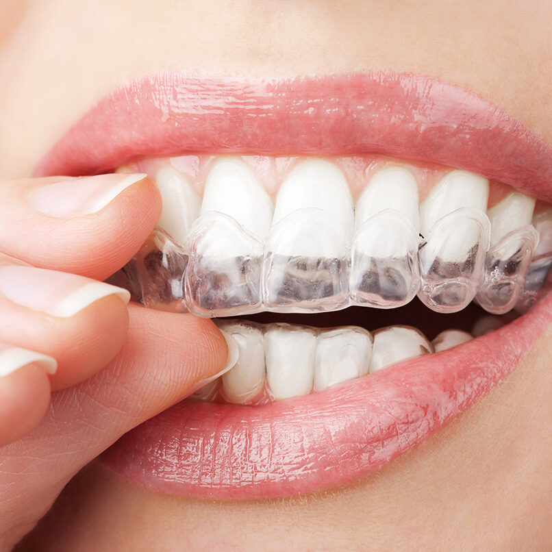 Invisalign-grand rapids