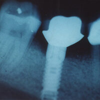 implant-before-xray